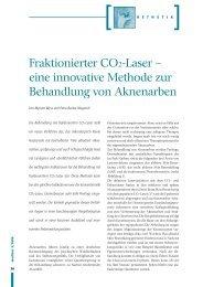 Fraktionierter CO2-Laser - Laserzentrum Zürichsee