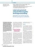Lokal und systemisch wirkende Hämostyptika bei Kriegsverwundung - Seite 2