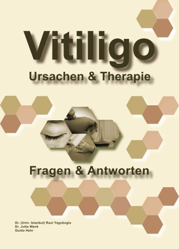 Vorwort - vitiligo-expert