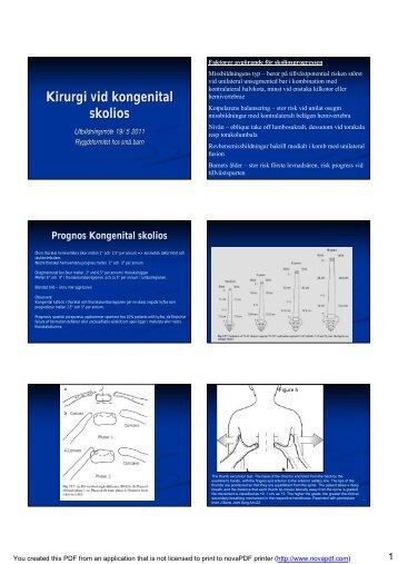 Kirurgi vid kongenital skolios