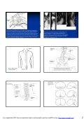 Kirurgi vid kongenital skolios - Page 2