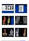 Kirurgi vid kongenital skolios - Page 5