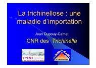 La trichinellose : une maladie d'importation - Infectiologie