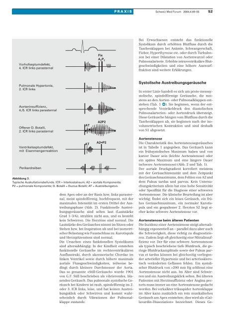 Systolisches Herzgeräusch - wie weiter? - Herzpraxis am Albis