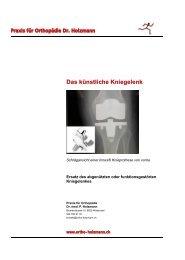 Das künstliche Kniegelenk - Dr. med. Patrick Holzmann, Wädenswil