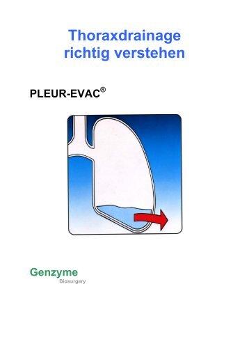 Thoraxdrainage richtig verstehen - Bak-24.de