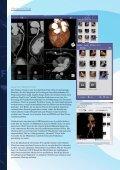 Aquarius iNtuition - TeraRecon - Seite 4