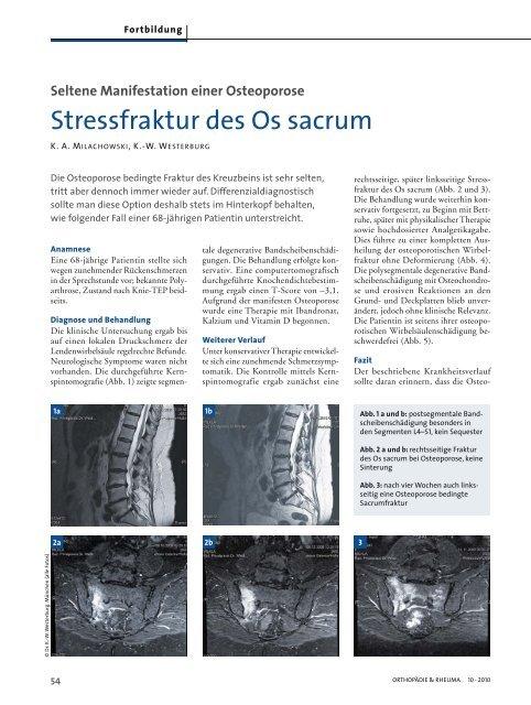 Stressfraktur des Os sacrum - Prirad.de