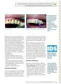 Neue Creme neutralisiert Säuren und reduziert das ... - GC Europe - Seite 2