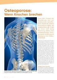 Osteoporose: Wenn Knochen brechen - gesund-in-ooe.at