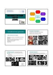 estudio del cancer de la faringe y cavidad oral . cuenca - Geyseco