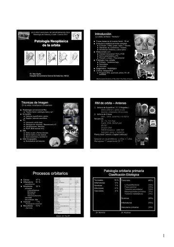 Procesos orbitarios - Geyseco