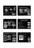 Procesos orbitarios - Geyseco - Page 3