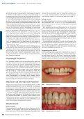 Zirconiumdioxid in der abnehmbaren Prothetik - Zirkonzahn - Seite 2