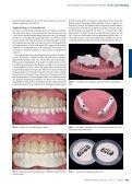 Zirconiumdioxid in der abnehmbaren Prothetik - Zirkonzahn - Seite 5