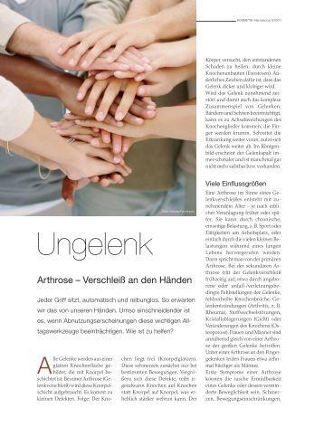 Ungelenk: Arthrose – Verschleiß an den Händen - Dr. med. Karl ...