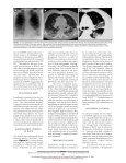 Bronchiolitis Obliterans Organizing Pneumonia - Cleveland Clinic - Page 3