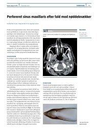 Perforeret sinus maxillaris efter fald mod nøddeknækker