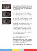 zde - Thevisioncareinstitute.cz - Page 4