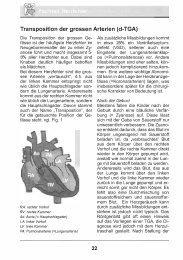 Transposition der grossern Arterien (d-TGA) Die Transposition der ...