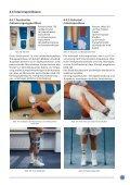 Otto Bock Prothesen-Kompendium - Orthotop - Seite 6