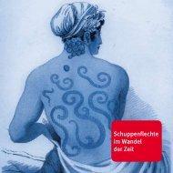 Psoriasis im Wandel - Psorinfo.de