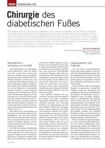 Chirurgie des diabetischen Fußes - AWA