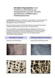 Kyphoplastie - Klinikum Friedrichshafen GmbH