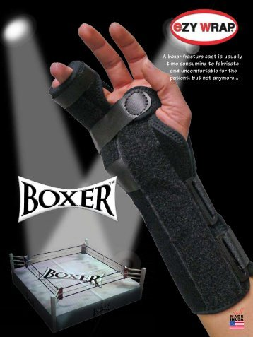 A boxer fracture cast is usually time consuming to ... - eZYWRAP