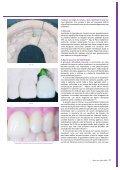 Prótese fixa sobre implantes: cimentar ou ... - Miguel Stanley - Page 4