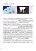 Prótese fixa sobre implantes: cimentar ou ... - Miguel Stanley - Page 5