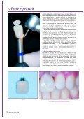 Prótese fixa sobre implantes: cimentar ou ... - Miguel Stanley - Page 7