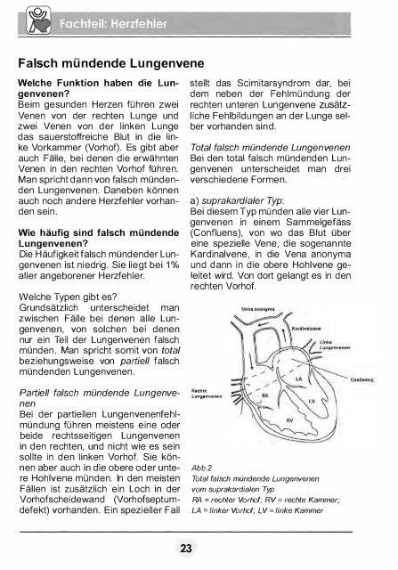 Falsch mündende Lungenvene