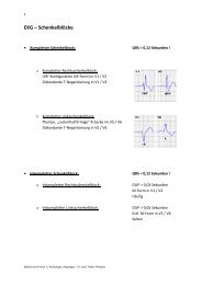 EKG – Schenkelblöcke - Medizin 2