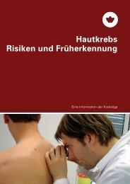 Hautkrebs Risiken und Früherkennung - Migesplus