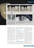 Vollkeramik ohne apparativen Aufwand (Norbert Pack, Bad Vilbel) - Seite 3