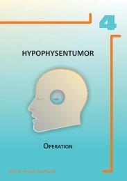 HYPOPHYSENTUMOR