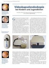 Videokapselendoskopie - Hauner Journal