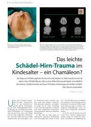 Schädel-Hirn-Trauma im - Hauner Journal