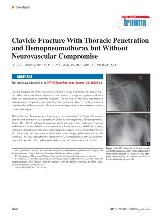 Clavicle Fracture With Thoracic Penetration and ... - Healio