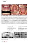 Cosmetic dentistry 03/2013 - AESTHETIKART - Seite 4