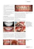 Cosmetic dentistry 03/2013 - AESTHETIKART - Seite 5