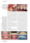 Cosmetic dentistry 03/2013 - AESTHETIKART - Seite 6