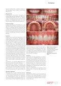 Cosmetic dentistry 03/2013 - AESTHETIKART - Seite 7