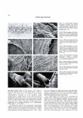 A scanning and transmission electron microscopic study of ... - Digitum - Page 2