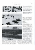 A scanning and transmission electron microscopic study of ... - Digitum - Page 3