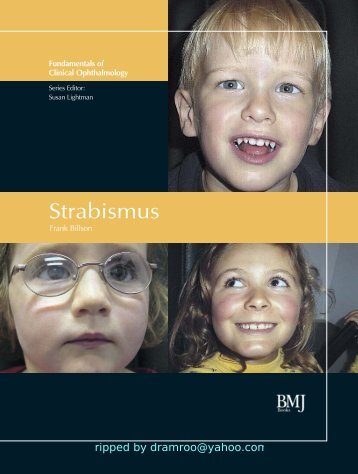 Strabismus - Fundamentals of Clinical Ophthalmology.pdf