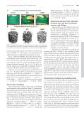 Abnormal Bone Microarchitecture and Evidence of Osteoblast ... - Page 5