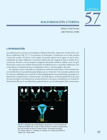 MALFORMACIÓN UTERINA - Axon