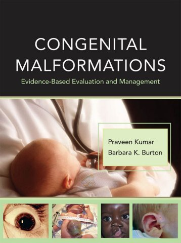 Congenital malformations - Edocr